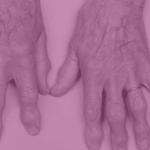 Optimización de la terapia biológica en patologías reumáticas: grado de adecuación a las recomendaciones actuales